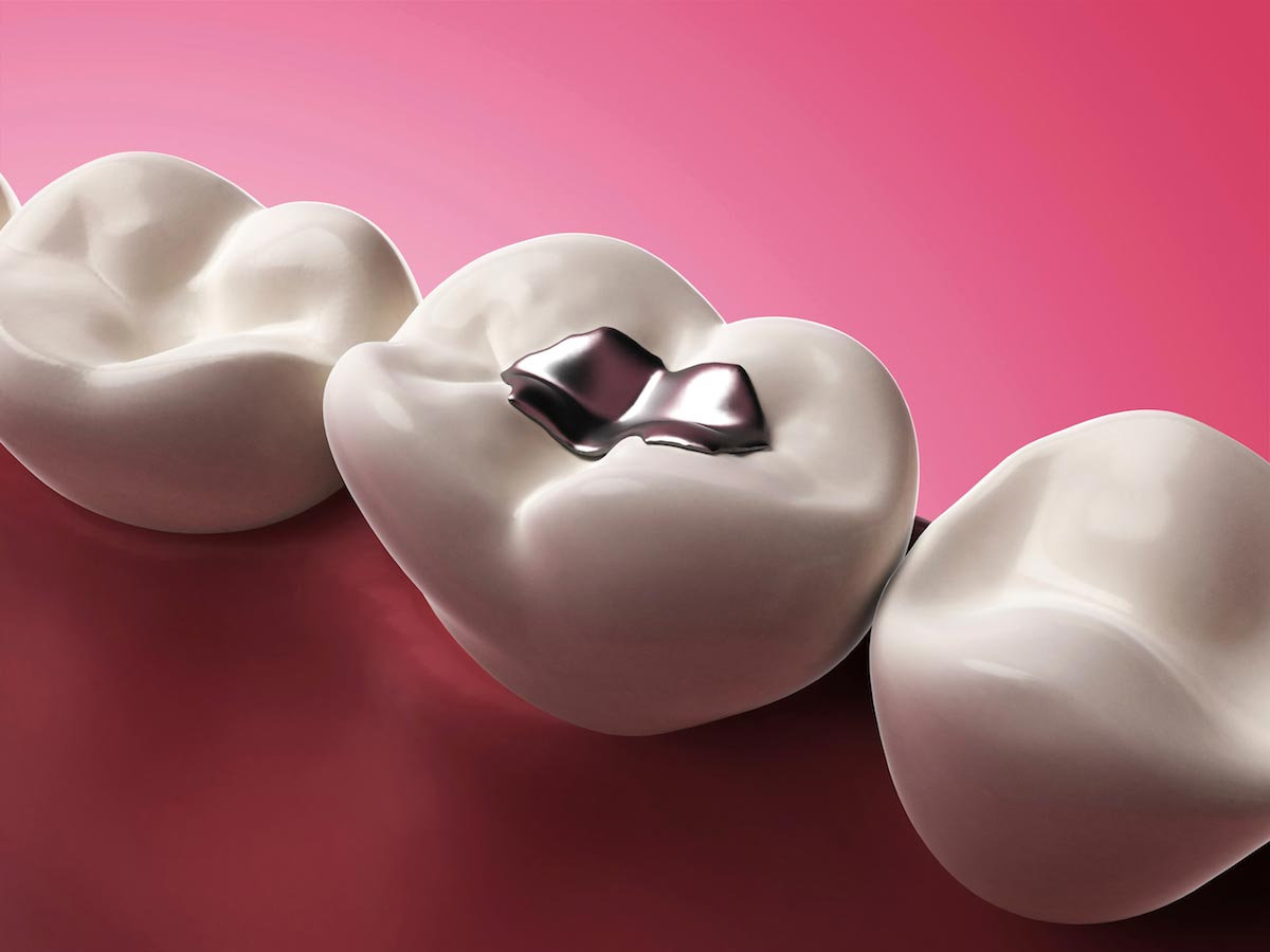 Your cell phone's radiation is causing mercury from your dental fillings to be released into your body's vital organs!