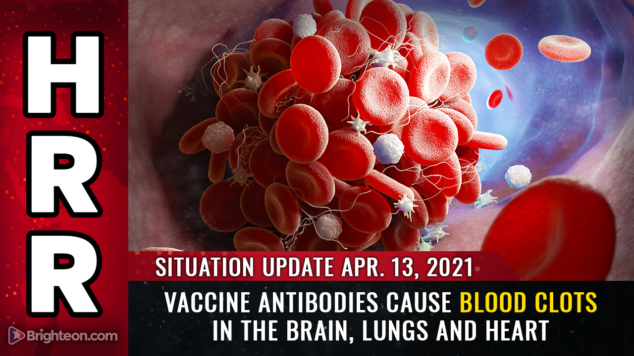 April 13th: Vaccine antibodies CAUSE blood clots in the brain, lungs and heart… FDA calls halt to J&J vaccine as deaths accelerate